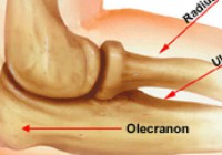 Tommy John Setbacks Explained, and Attack from Olecranon